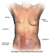 gps BreastReconstruction_TRAM