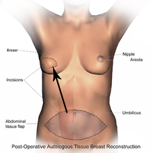 gps BreastReconstruction_TRAM_PostOp